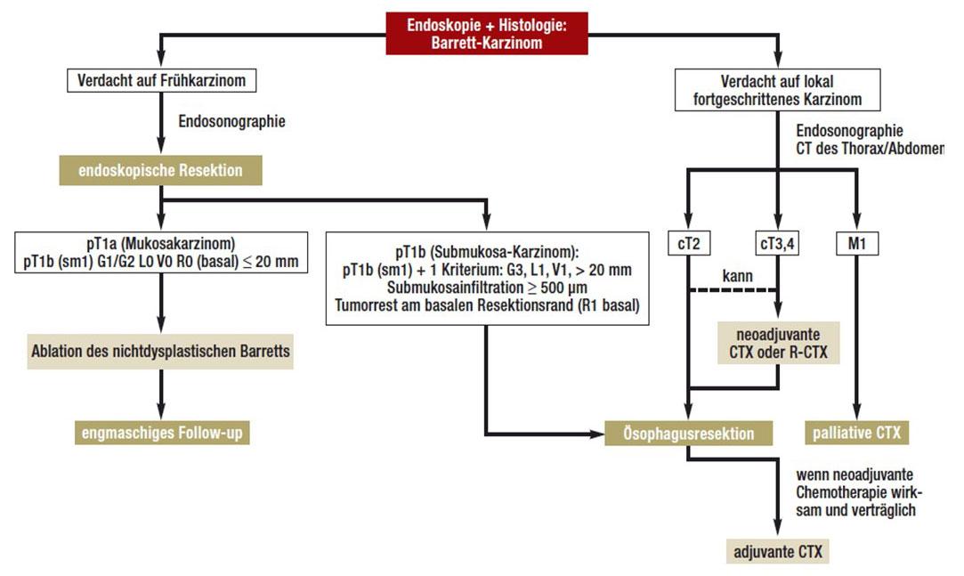 Übersicht über die Therapiemöglichkeiten des Barrett-Karzinoms