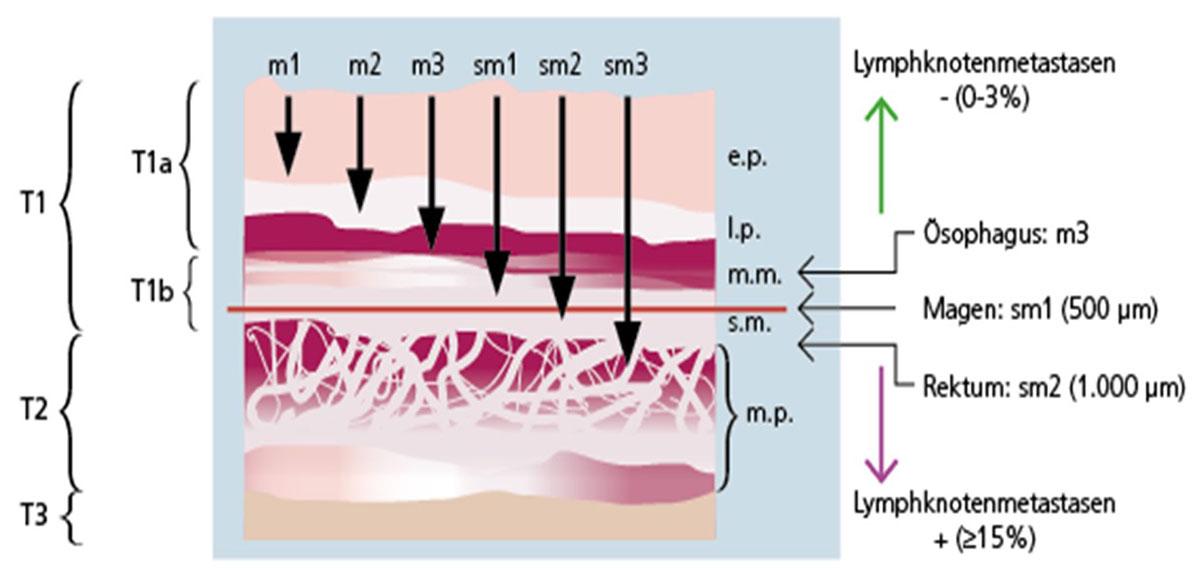 Schematische Darstellung des Metastasierungsrisikos bei verschiedenen Tumoren des Verdauungstraktes