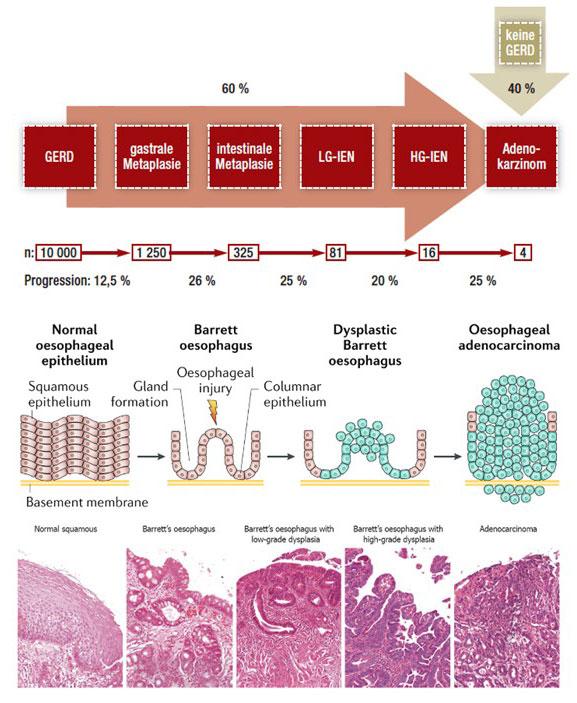 Schritte von der Gastroösophagealen Refluxerkrankung