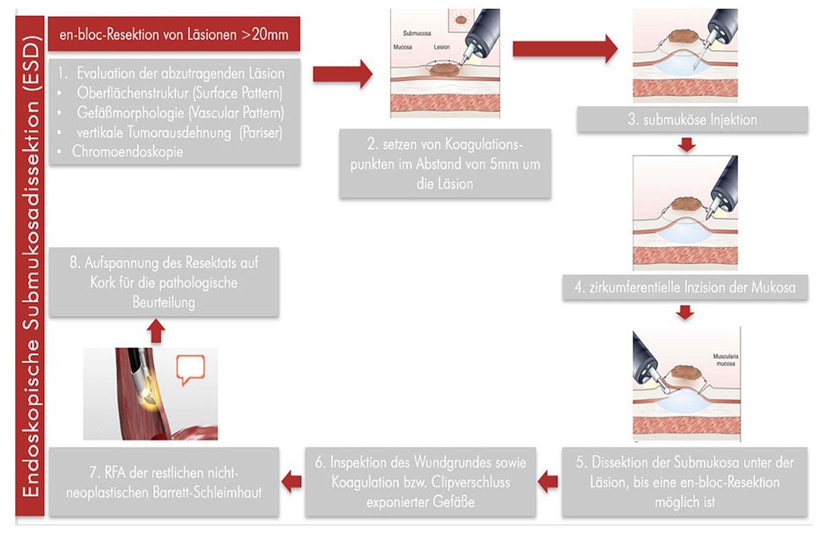 Übersicht über die einzelnen Schritte der endoskopischen Submukosadissektion