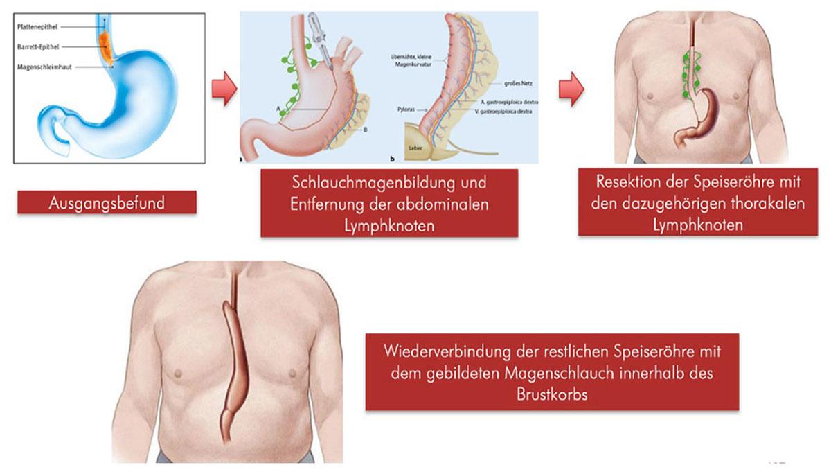 Übersicht über die Schritte der transthorakalen subtotalen Ösophagektomie mit Schlauchmagenhochzug