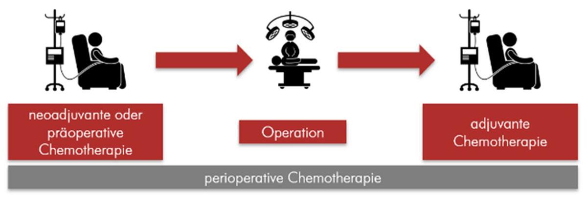 Darstellung des Prinzips der perioperativen Chemotherapie