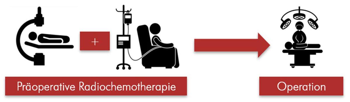 Darstellung des Prinzips der neoadjuvanten Radiochemotherapie