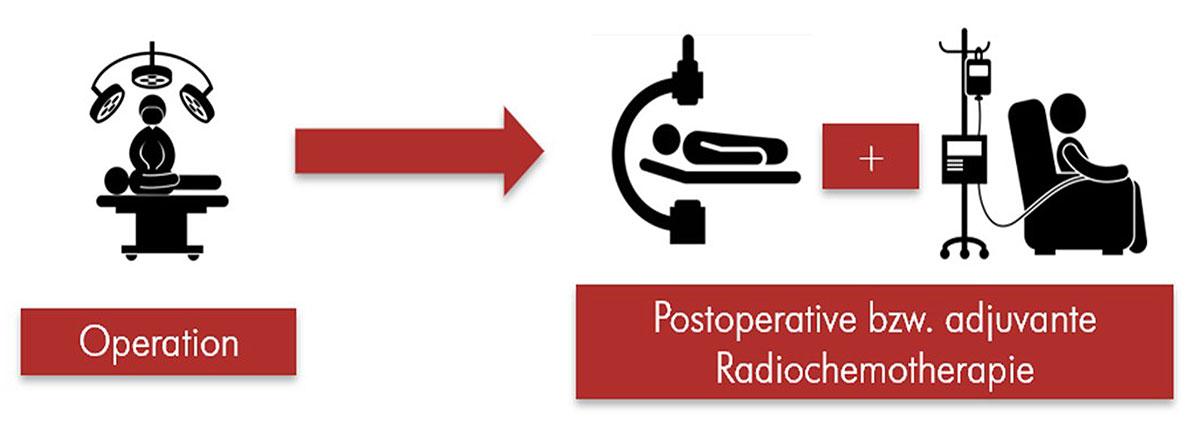 Darstellung des Prinzips der adjuvanten Radiochemotherapie