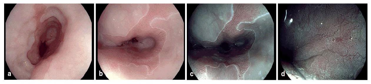 Endoskopische Bilder eines Barrett-Ösophagus mit HD-Endoskopie und Essigsäure